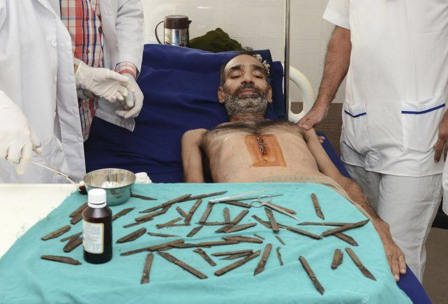 Fue al médico por un fuerte dolor abdominal y le sacaron 40 navajas de la panza