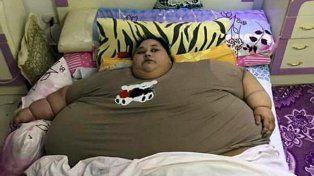 De 500 kilos, la mujer más gorda del mundo será operada en India