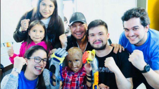 Tinelli le consiguió a Maxi las prótesis impresas en 3D para poder tener dedos en sus manos