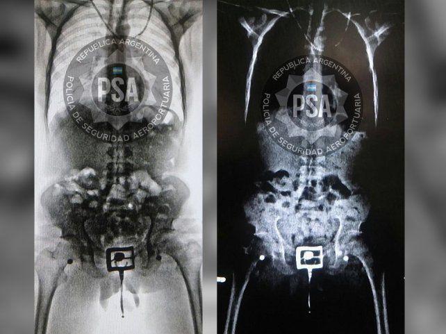 Seguridad. El body scan permitió evidenciar la presencia de cuerpos extraños.