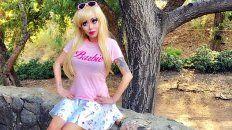 gasto miles de dolares para verse igual a una barbie y mira como quedo