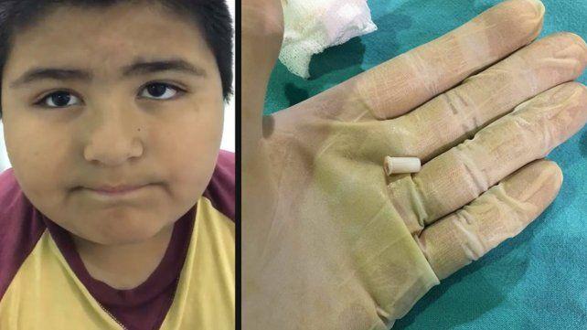 Imperdible: un nene se tragó un silbato y se hizo viral en las redes