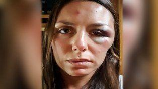 Una joven santafesina fue atacada y acuchillada en un cerro de Ecuador