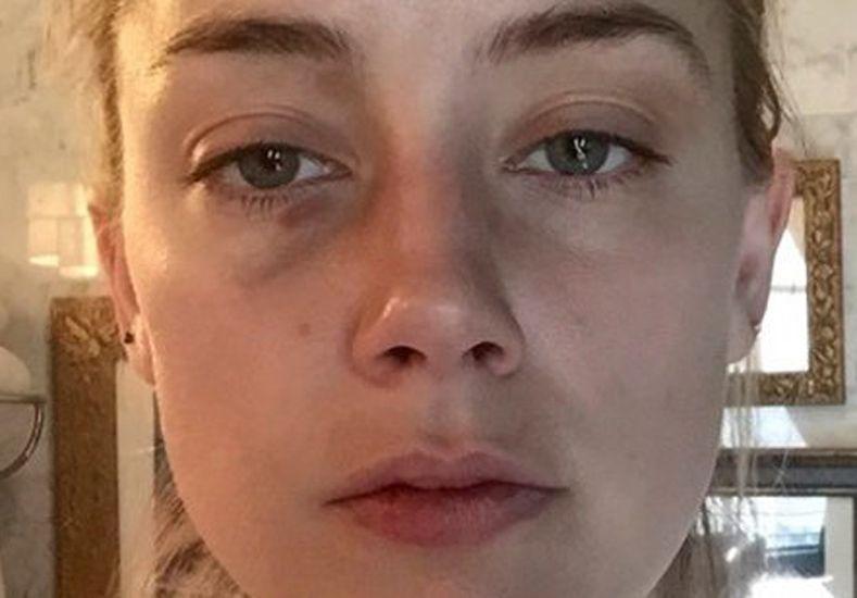 Amber Heard difundió fotos que comprobarían las agresiones de Johnny Depp