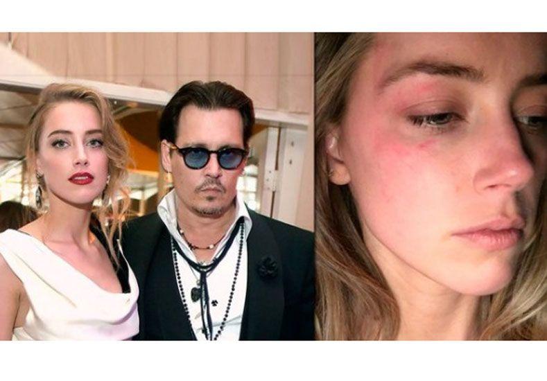 La esposa de Johnny Depp reveló cómo fue la agresión del actor que ya tiene una restricción