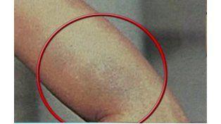 Una foto confirmaría la agresión física de Fede Bal a Barbie Vélez
