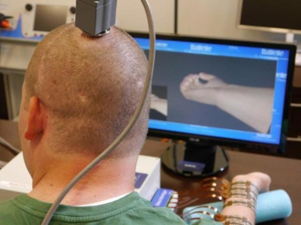 Un parapléjico logró mover su mano con la ayuda de un chip implantado en su cerebro