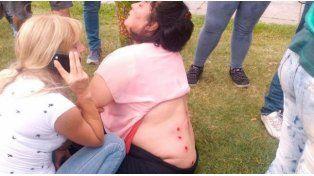 La Plata: brutal represión a trabajadores