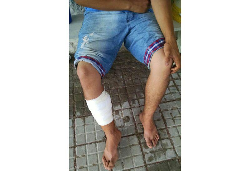 Herido. El chico se recupera. (Foto gentileza Reporte 100.7)
