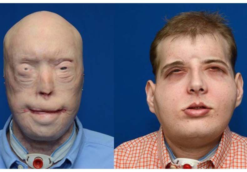 El trasplante de cara más extenso de la historia