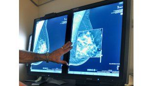 Recomiendan iniciar mamografías a los 45 años, no a los 40