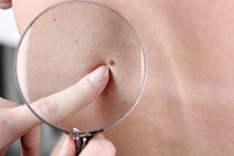 La cantidad de lunares del brazo puede alertar sobre el cáncer de piel