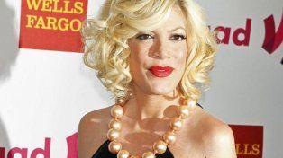 Actriz de Beverly Hills 90210 se sometió a un tratamiento estético que le afectó seriamente la cara