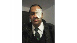 Ataque. Vidrios en el ojo. (Foto: Facebook)