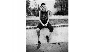 Una modelo perdió su pierna por usar algo que muchas mujeres usan