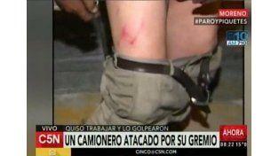 Paro de transporte: Un chofer fue atacado por compañeros de su gremio