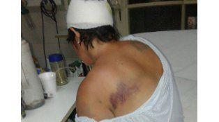 Detuvieron a la pareja de la mujer salvajemente golpeada en un descampado