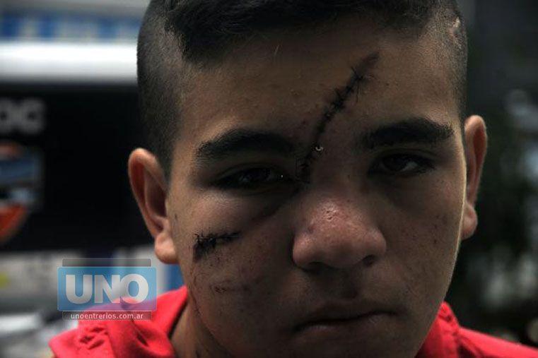 Maltratado. El santafesino sufrió apremios ilegales por parte de la Policía. Foto UNO/Santa Fe