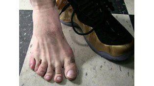 Un famoso deportista reveló que tiene seis dedos en un pie