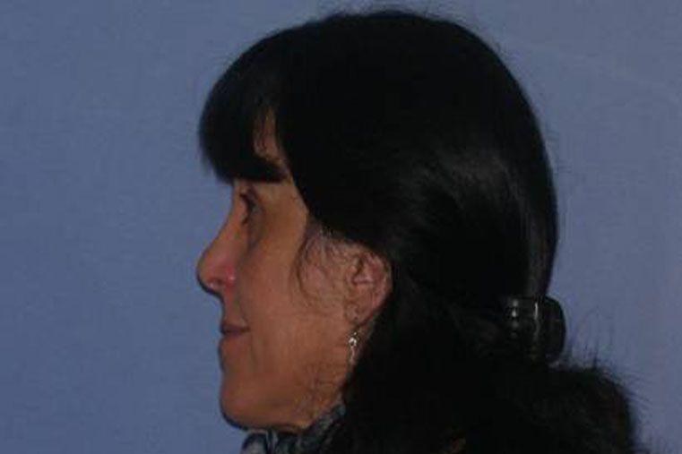 Bonazzola permaneció prófuga cuatro años.