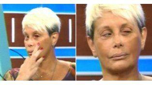 Qué le pasó a Carmen Barbieri en el ojo