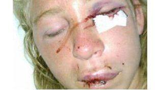 Detuvieron al joven que agredió brutalmente a su ex novia en una fiesta en Mar del Plata