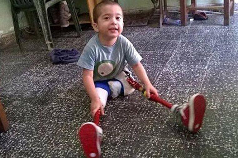 Ya juega. El pequeño volvió a sonreír con sus piernas artificiales.