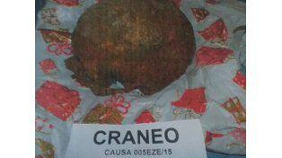 Un turista fue demorado en Ezeiza por llevar un cráneo en la valija