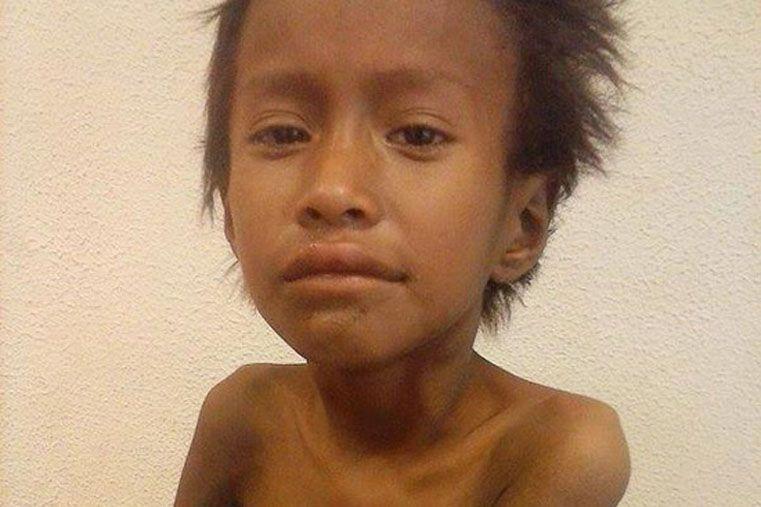 Un niño de 7 años murió por desnutrición y tuberculosis