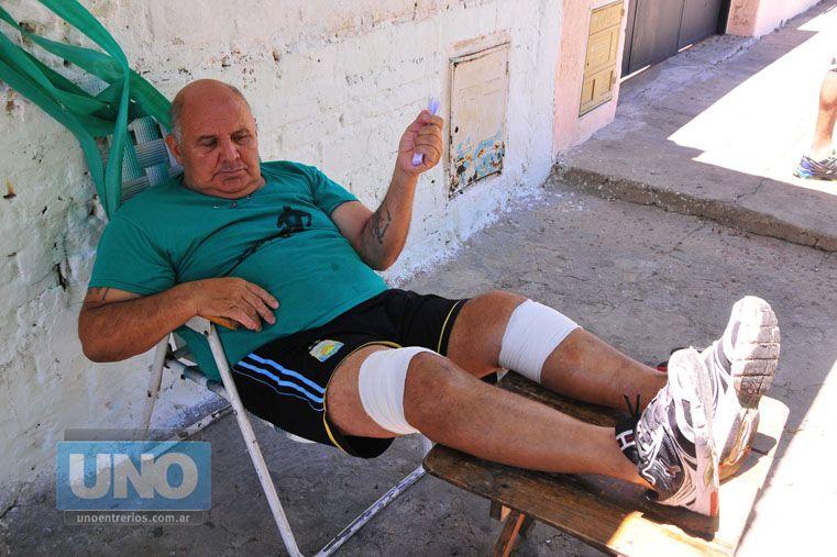 Secuelas. En una de las piernas le hicieron cinco puntos y en la otra 10. (Foto: UNO/Juan Manuel Hernández)