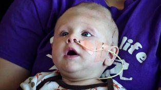 El bebé que nació con el cerebro fuera de la cabeza y tuvo una operación exitosa
