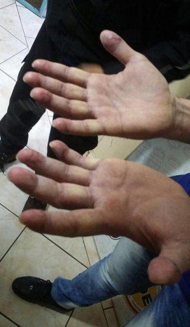 Las pericias sobre las manos de Ibar Pérez Corradi