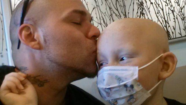 Se tatuó la cicatriz de su hijo, operado de cáncer