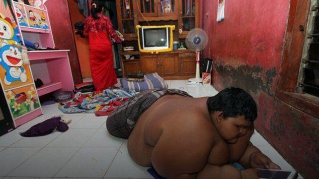 El niño más gordo del mundo y su preocupante estado de salud