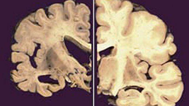 Lado izquierdo conAlzheimery lado derecho normal.