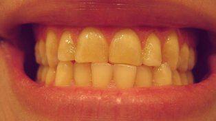 El nuevo truco para blanquear los dientes ya es furor en todo el mundo