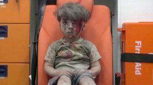 Murió el hermano de Omran, el niño rescatado de la guerra en Siria