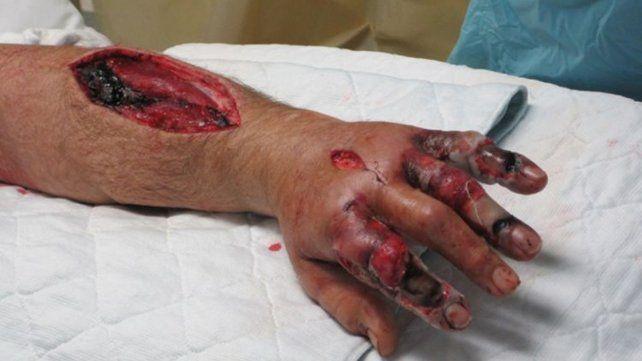 Florida: Reportan cinco muertos y más de 20 infectados por bacteria come carne
