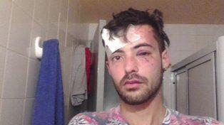 Fue salvajemente golpeado por dar a conocer su orientación sexual