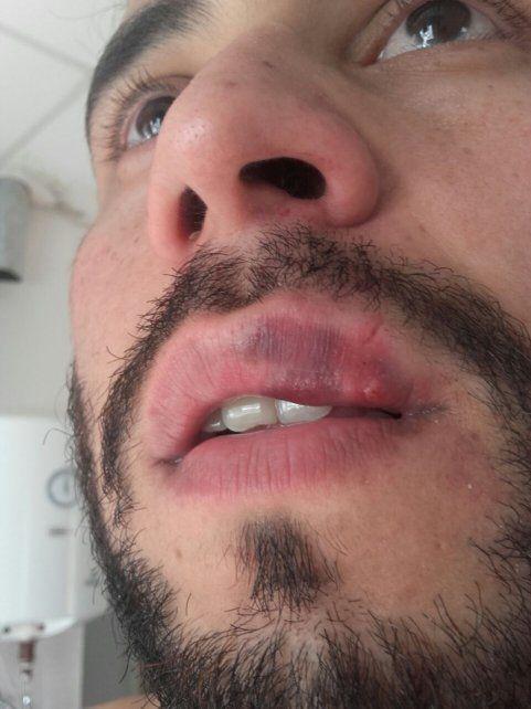 Árbitro golpeó a un técnico de Futsal hasta hacerlo convulsionar