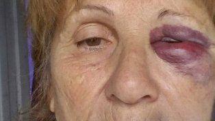 Un hombre golpeó salvajemente a su madre