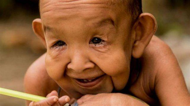 El conmovedor caso del nene que tiene 4 años y parece de 80
