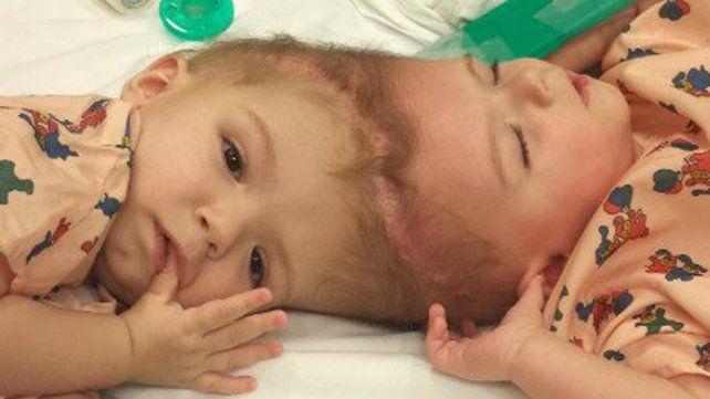 Separaron a siameses unidos por el cráneo tras 16 horas de cirugía