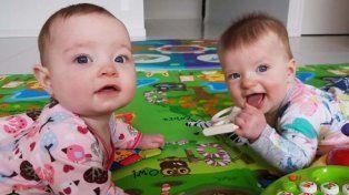 Charlotte y Olivia nacieron juntas dos días antes de la cesárea programada.