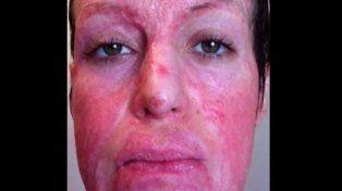 La joven sufrió quemaduras en el 64% de su cuerpo.