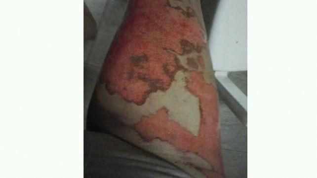 Un boxeador roció con nafta y prendió fuego a su novia