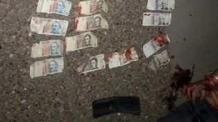Las manos del joven cortadas y el dinero manchado con sangre.