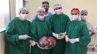Extrajeron a un paciente un tumor maligno de 15 kilos
