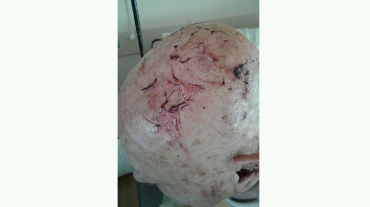 Cerrito: salvaje agresión a un almacenero