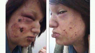 El joven la mordió en la cara y las manos.